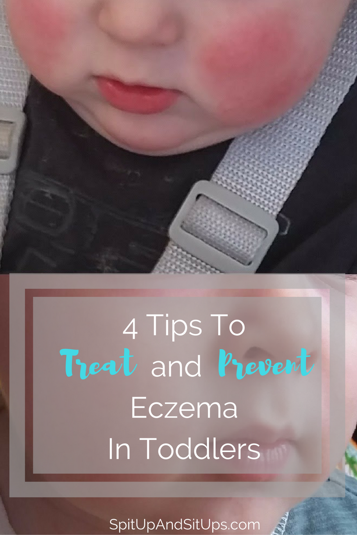 How To Treat Eczema In Toddlers And Babies Spit Up And