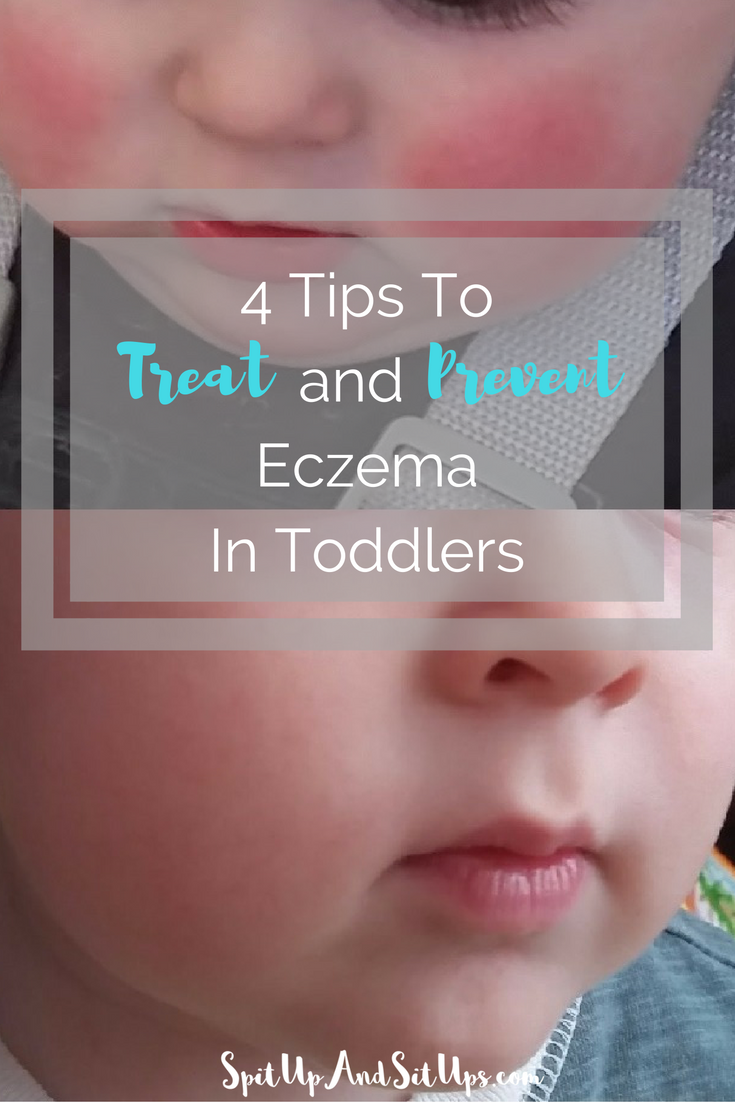 Dealing with eczema and toddlers and babies - tips to prevent eczema, treat eczema, help eczema breakouts